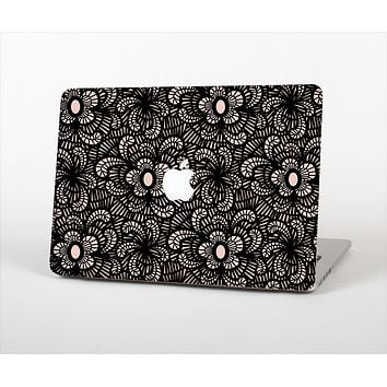 The Black Floral Lace Skin Set for the Apple MacBook Air 11""