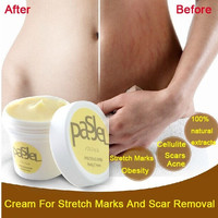 Stretch Marks And Remove Scar Cream Maternity Skin Body Repair Cream Care Postpartum(Size: 50 g, Color:Orange) = 1946086916
