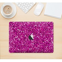 """The Bright Pink Glitter Skin Kit for the 12"""" Apple MacBook (A1534)"""