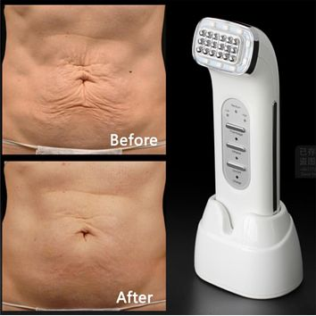 Remove Wrinkles Matrix Facial Therm Lifting Face Lift Body Skin Care Beauty