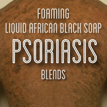 Fra Fra's Naturals | Premium Healing Psoriasis Foaming African Black Soap Face and Body Wash