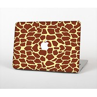 """The Simple Vector Giraffe Print Skin Set for the Apple MacBook Pro 13""""   (A1278)"""