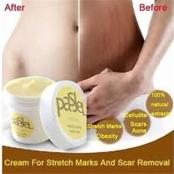 Cream Remove Scar Stretch Marks Care Postpartum Maternity Skin Body Repair (Size: One Size) Care [9305890247]